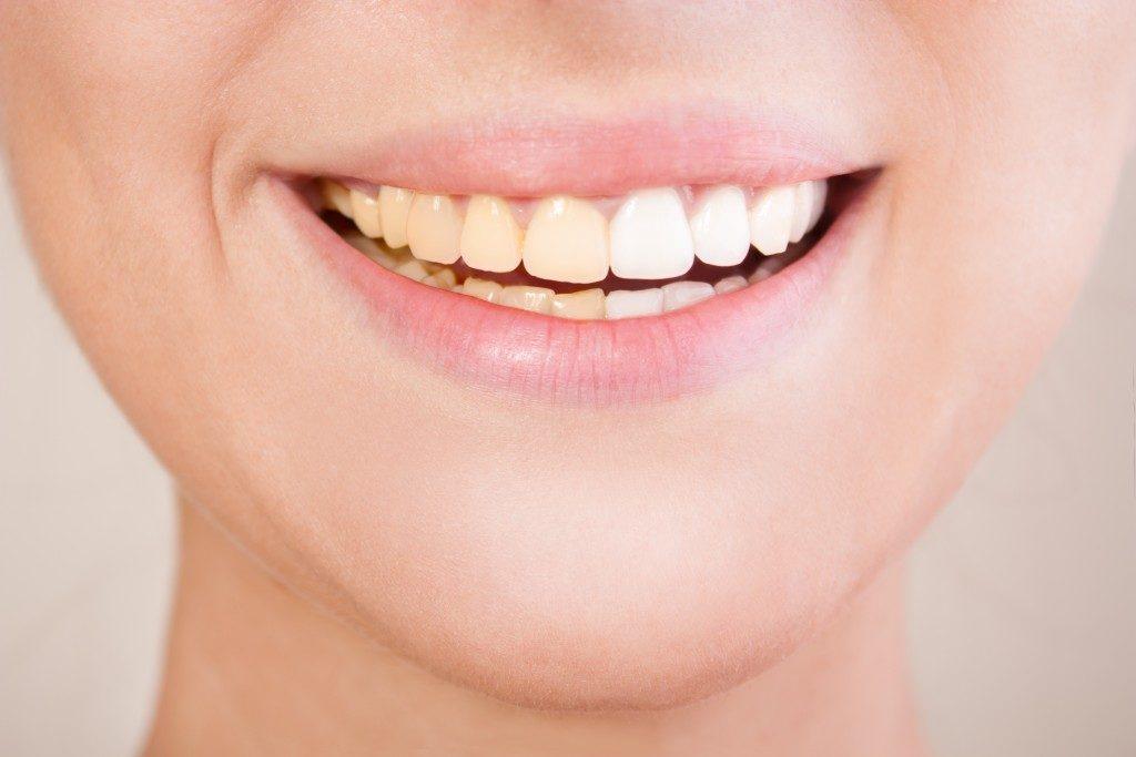 Set of teeth with 2 shades