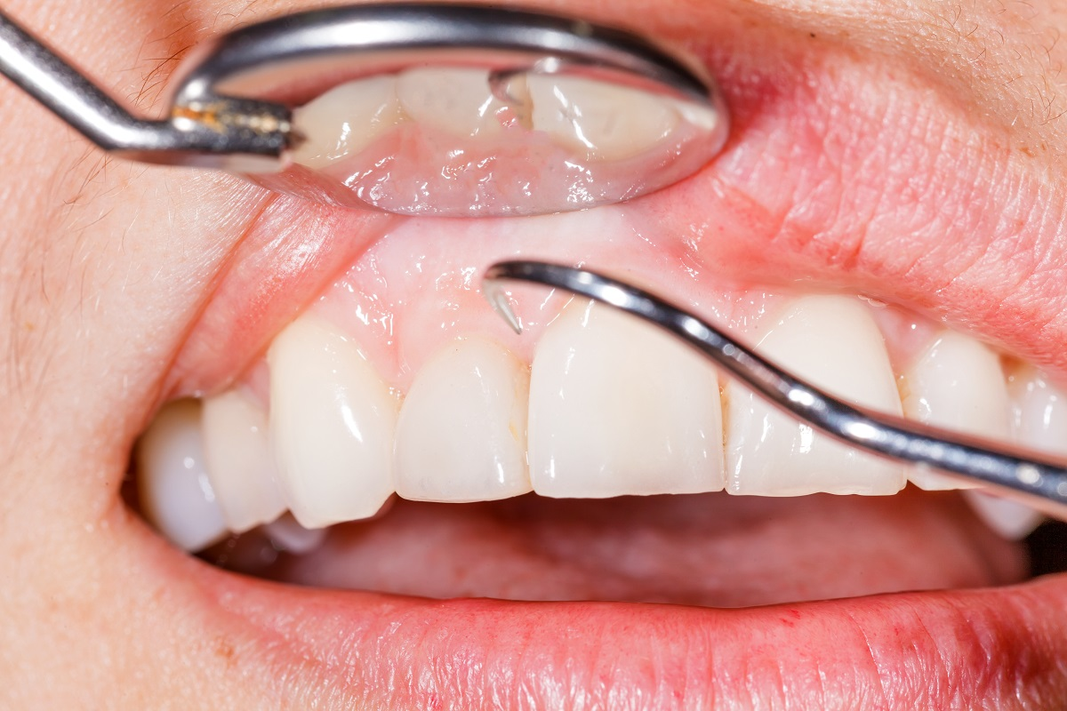 How gum disease can affect health