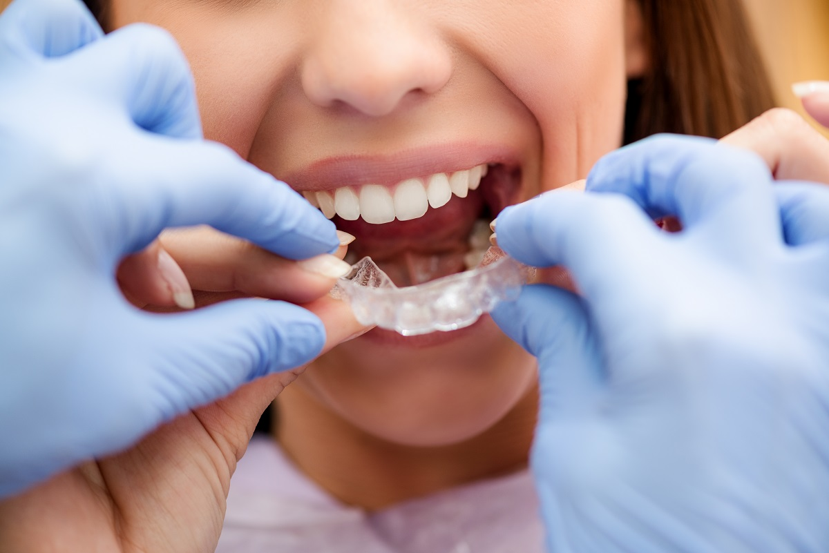 Five Top Trends in Orthodontics Right Now